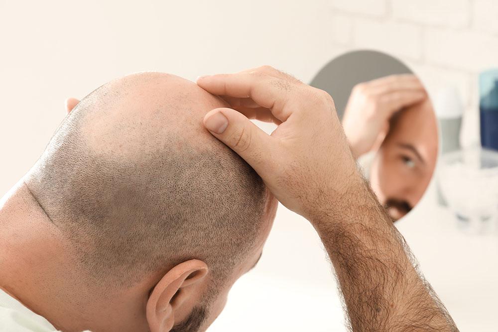 Hiustensiirto